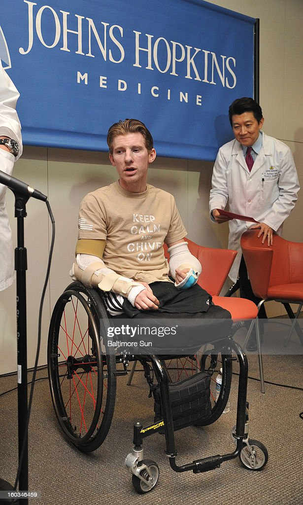 Brendan Marrocco attends a press conference, January 29, 2013, held at Johns Hopkins Hospital in Baltimore, Maryland, with his team of doctors to discuss his bilateral arm transplant surgery, which was done on Dec. 18, 2012. Behind him is Dr. W.P. Andrew Lee. Marrocco lost all four limbs in a roadside bomb attack in Iraq in 2009. Marrocco, from Staten Island, New York, is the first successful double arm transplant at Hopkins, and only the 7th patient in the U.S. to undergo this surgery.