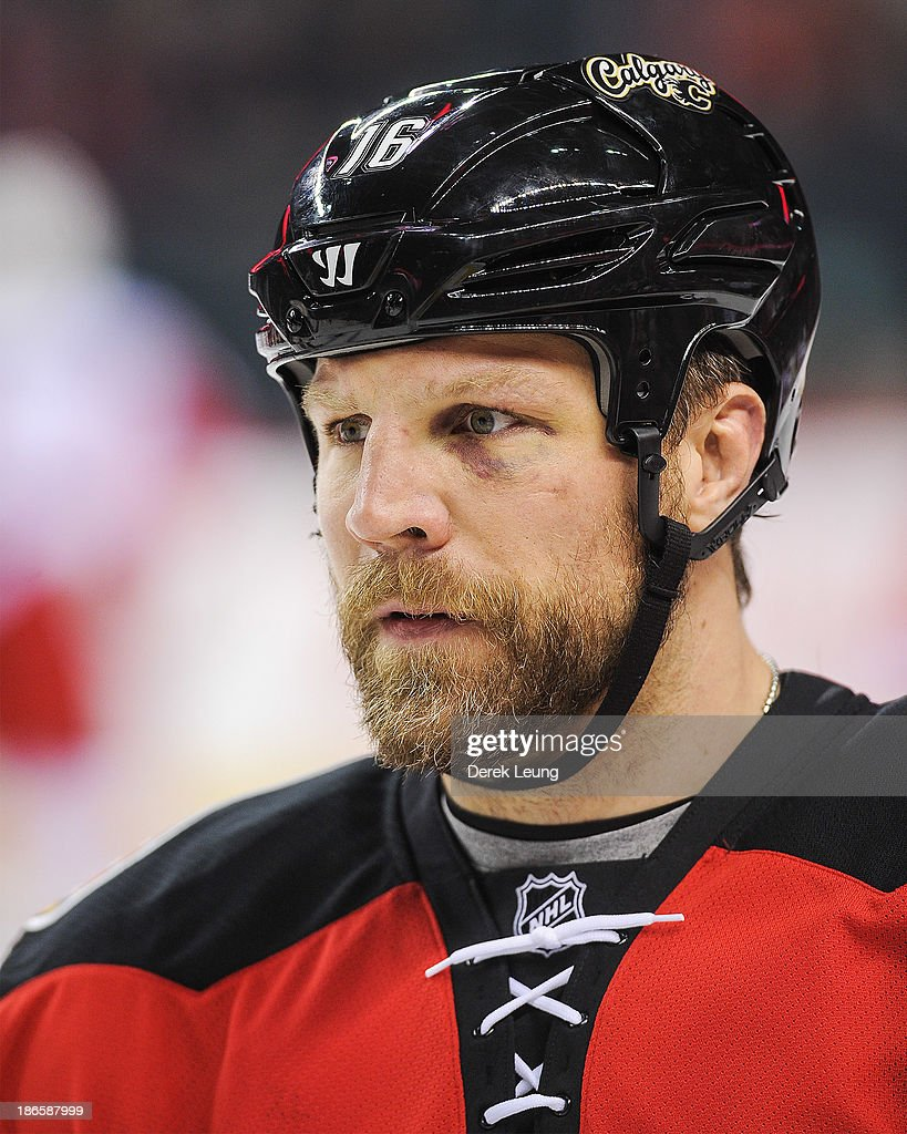 Brian McGrattan of the Calgary Flames sports a black eye during warmups prior to an NHL game against the Detroit Red Wings at Scotiabank Saddledome...