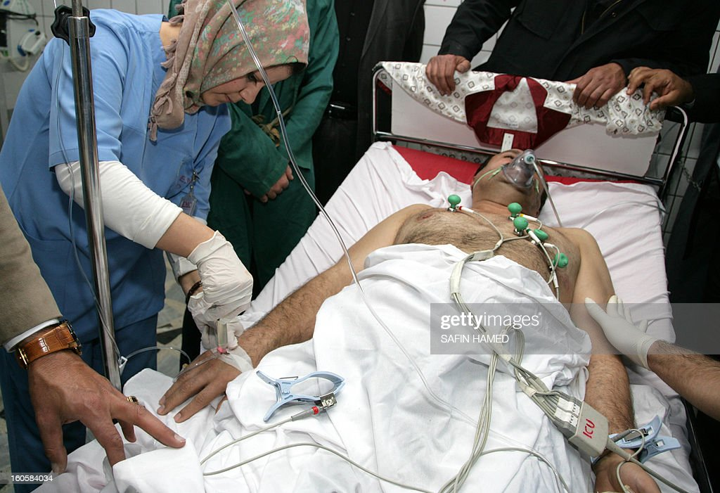 Brigadier General Sarhad Qadar is treated at Arbil hospital after he was wounded in a suicide car bomb at the police headquarters in Kirkuk, on February 3, 2013. The suicide car bomb during morning rush hour was quickly followed by an assault by grenade-throwing gunmen and killed 30 people in the disputed ethnically-mixed city of Kirkuk in north Iraq.