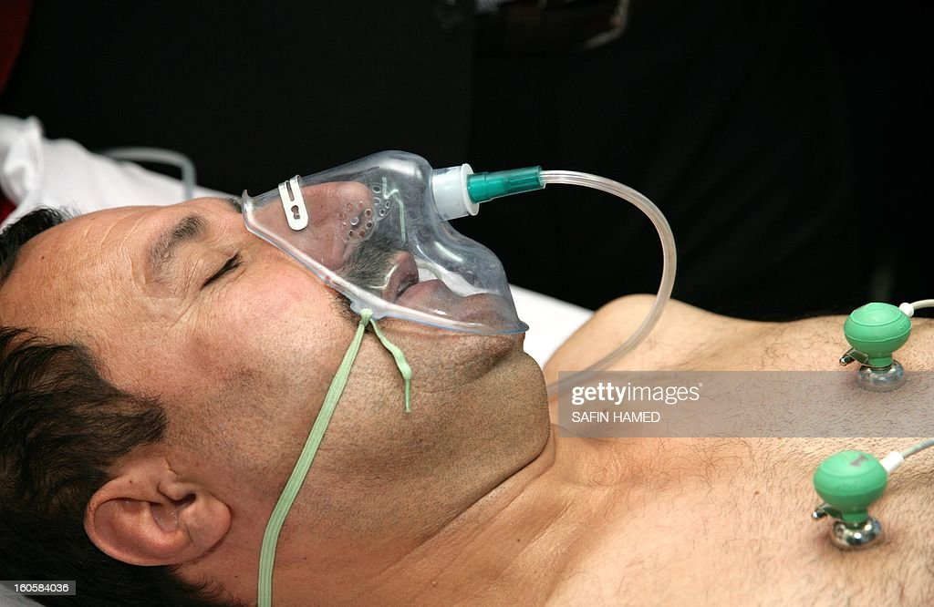 Brigadier General Sarhad Qadar is under respiratory assistance at Arbil hospital after he was wounded in a suicide car bomb at the police headquarters in Kirkuk, on February 3, 2013. The suicide car bomb during morning rush hour was quickly followed by an assault by grenade-throwing gunmen and killed 30 people in the disputed ethnically-mixed city of Kirkuk in north Iraq. AFP PHOTO SAFIN HAMED