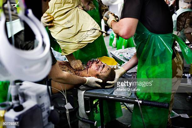 British military medical personnel from the UK Med Group perform an anaesthetic as part of a resuscitation on injured British Army soldier Simon...