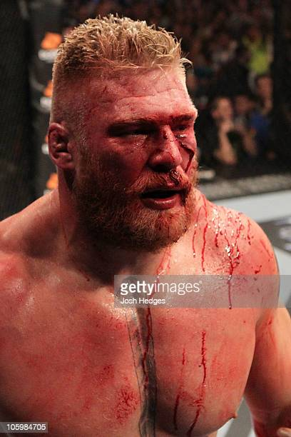 Brock Lesnar looks on after losing to Cain Velasquez by first round TKO in their heavyweight title bout during UFC 121 on October 23 2010 in Anaheim...