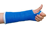 Broken arm in a cast on a white background. Fingers show the character all right