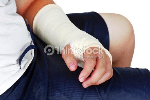 Broken Hand In Einem Gips Gipsverband Stock Foto Thinkstock