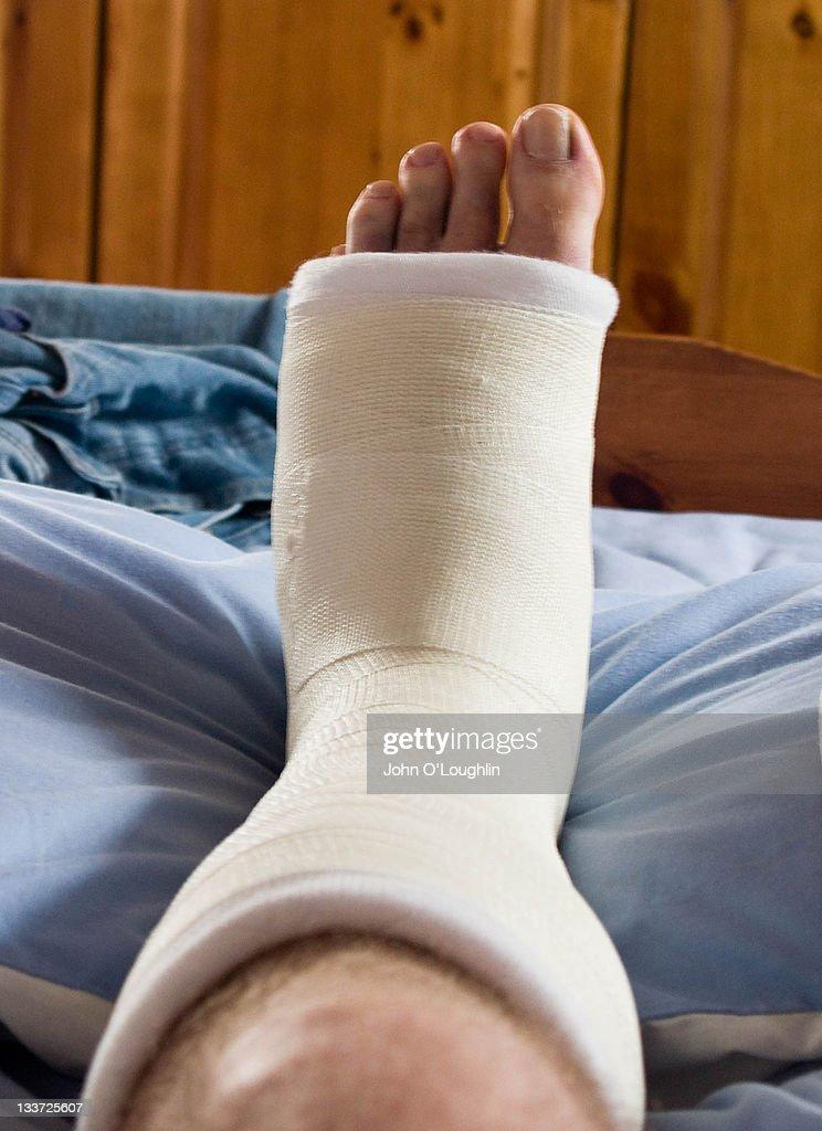 Broken left foot in plaster : Stock Photo