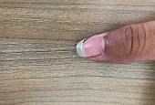 Broken nail of black finger on the wooden background.