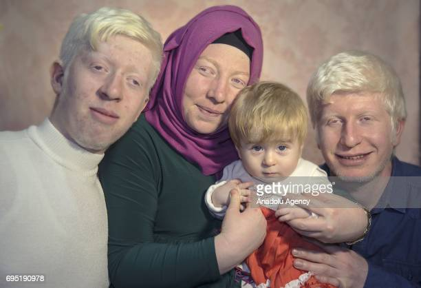 Brothers with albinism Hakan and Emre Akipinar Azra Akpinar and Fatma Keles pose for a photo in Istanbul Turkey on November 30 2017 Albinos a rare...