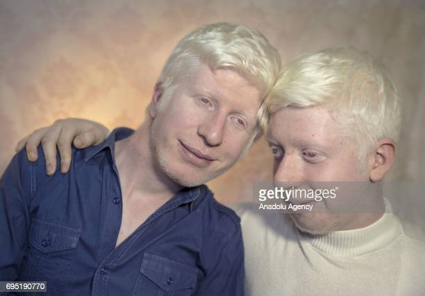 Brothers with albinism Hakan and Emre Akpinar poses for a photo in Istanbul province of Turkey on November 30 2017 Albinos a rare group of genetic...