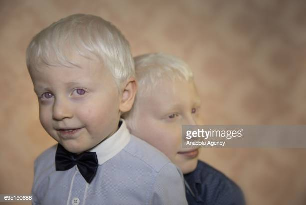 Brothers with albinism Kaan and Furkan Cagdas pose for a photo in Bursa province of Turkey on June 12 2017 Albinos a rare group of genetic disorders...