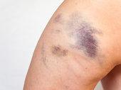 Bruise