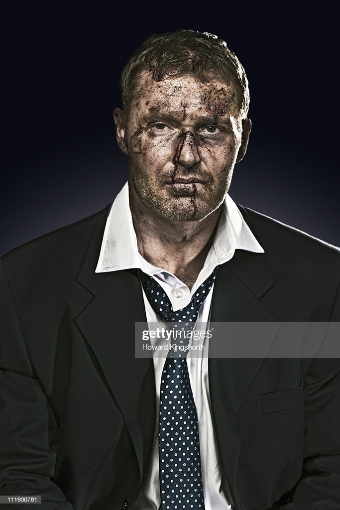 bruised and battered businessman looking to camera : Stock Photo