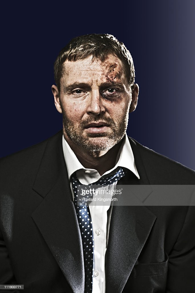 bruised businessman looking to camera : Foto de stock