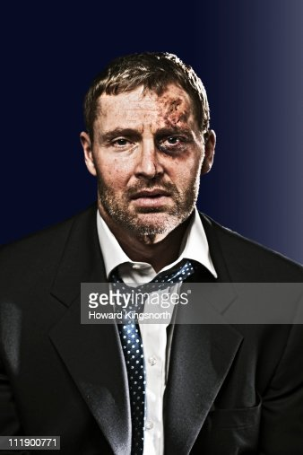 bruised businessman looking to camera : Stock Photo
