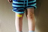 Bruised Knees