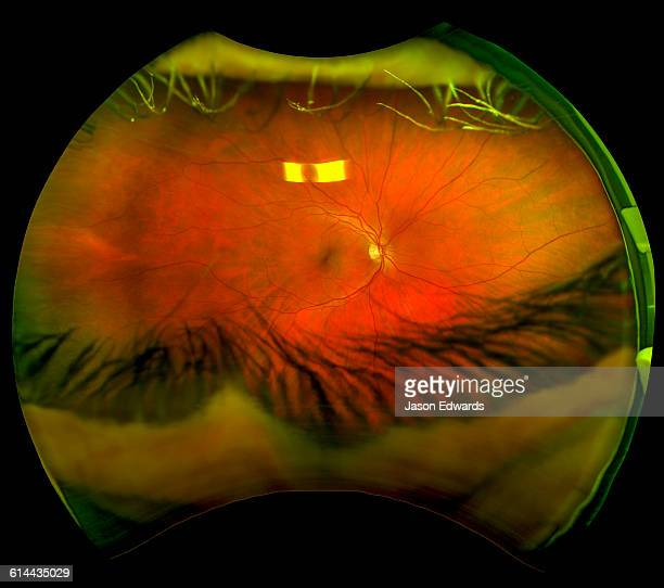 An ultra wide digital retinal scan of a human eye showing the veins and capillaries in a retina.