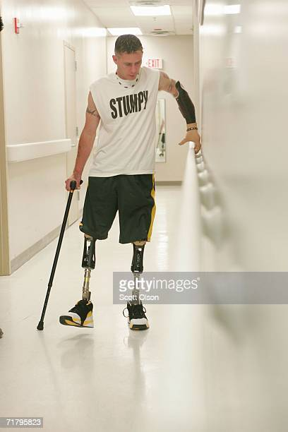 Bryan Anderson practices walking on his artificial legs at Walter Reed Army Medical Center August 18 2006 in Washington DC Anderson an Army Military...