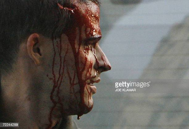 A protester bleeds after clashes with riot police during a demonstration 23 October 2006 in central Budapest as Hungary marked the anniversary of the...