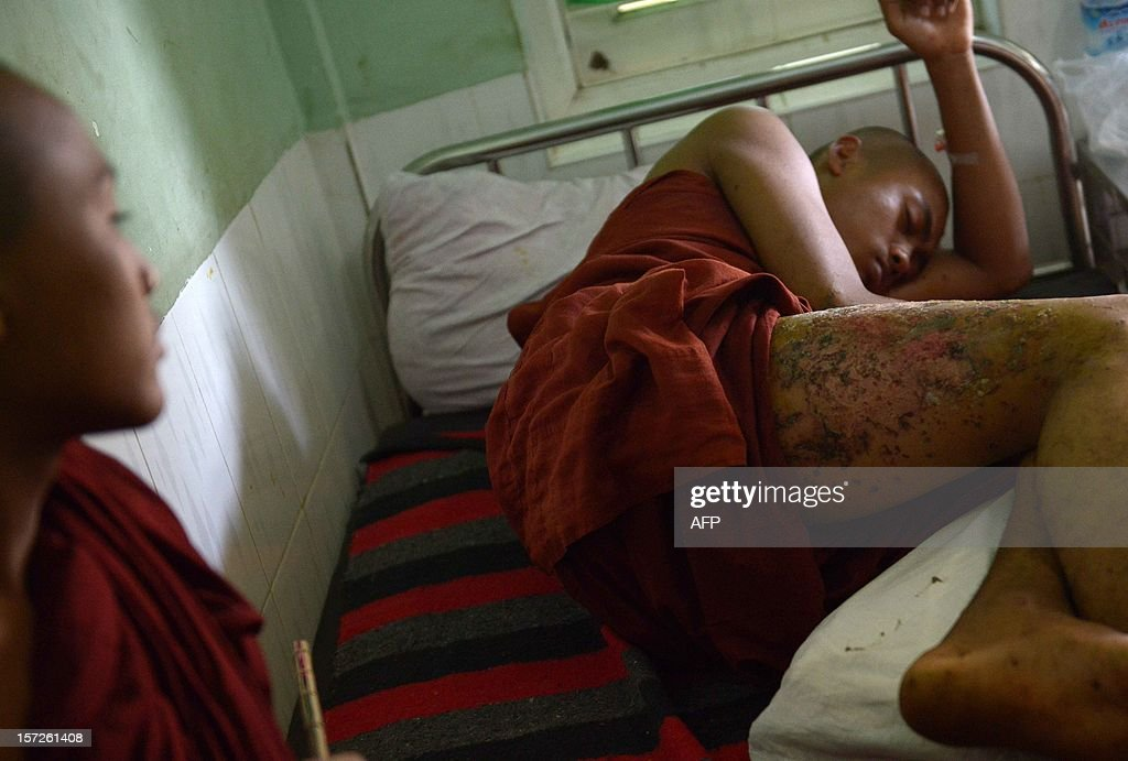A Buddhist monk who was injured in a crackdown on a protest at a Chinese-backed copper mine, rests at a hospital in Monywa, northern Myanmar on December 1, 2012. Police apologised for injuring scores of monks in the crackdown, but tensions over the pre-dawn raid remained high. AFP PHOTO/Ye Aung THU