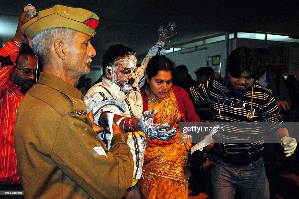 A burn victim receives assistance after a fire destroyed tents at the Kumbh Mela in Allahabad on January 25, 2013. Nineteen people were injured when a fire broke out at the Triveni area of Kumbh Mela in Allahabad district, a local report said citing officials. The Kumbh Mela in the Indian town of Allahabad will see up to 100 million worshippers gather over the next 55 days to take a ritual bath in the holy waters, believed to cleanse sins and bestow blessings