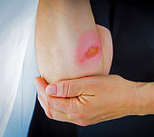 Painful burn on mature woman forearm. Red swelling