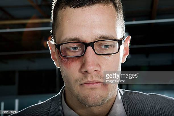 Businessman with a bruised eye