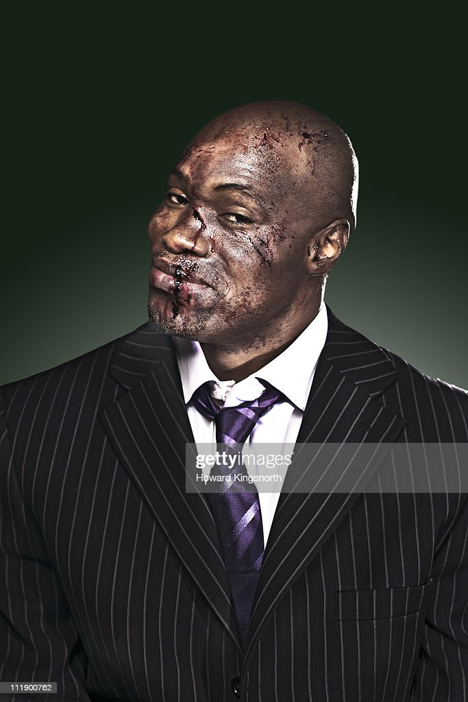 businessman with bloody face looking to camera : Stock Photo