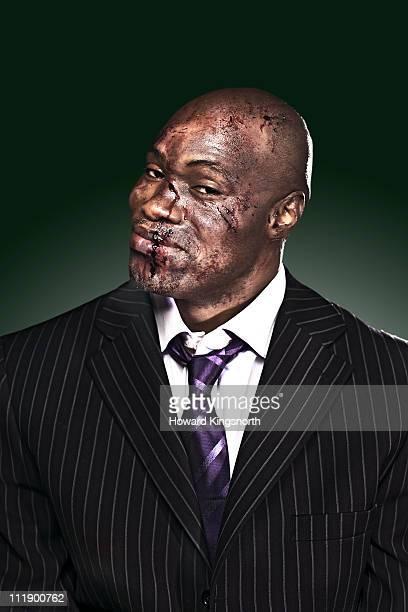 businessman with bloody face looking to camera