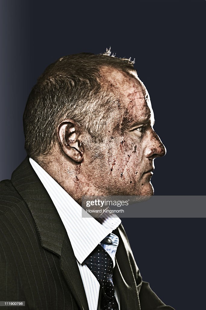 businessman with bruised and bloody face : Stock Photo