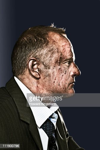 businessman with bruised and bloody face : Bildbanksbilder