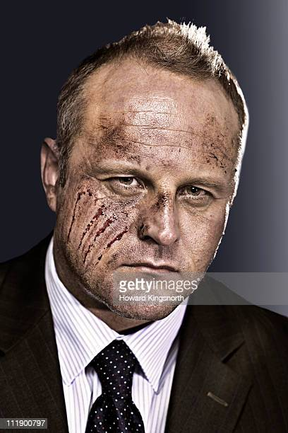 businessman with scrathed and bruised face
