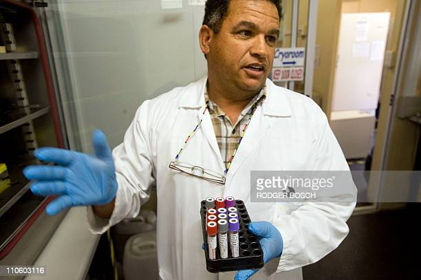 STORY by Justine Gerardy === Christian Hopley a senior technologist holds blood samples at the South African Tuberculosis Vaccine Initiative...