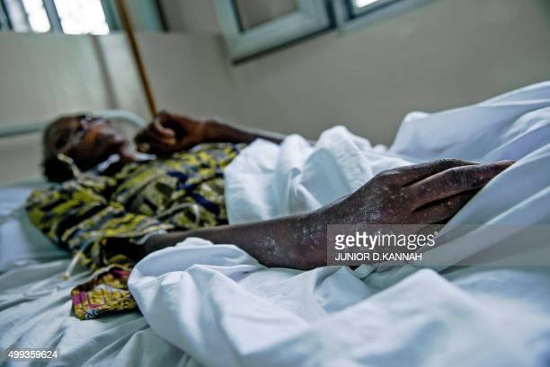 STORY by Marc JOURDIER A patient is treated at the MSF HIV centre in the town of Lingala on November 30 2015 The MSF AIDS project in Democratic...