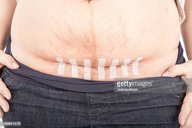 Caesarean section with steri strips