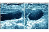 Calculus cholecystitis seen on two ultrasounds of the gallbladder