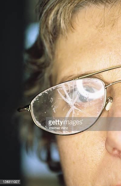 California, Woman wearing smashed glasses