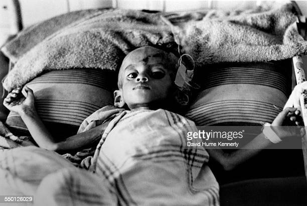 A Cambodian refugee child in a hospital Phnom Penh Cambodia March 29 1975 Cambodia was taken over by the Khmer Rouge a two weeks later and her fate...