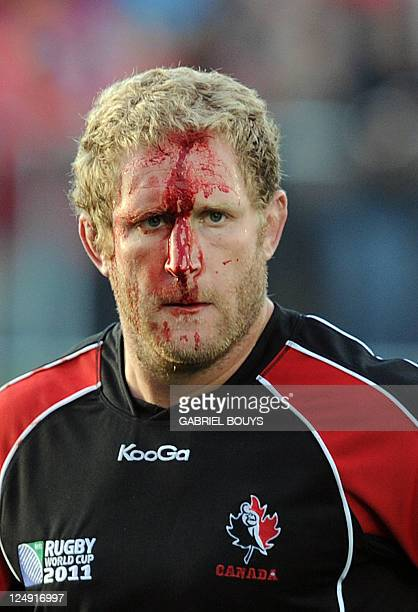 Canada's Pat Riordan face is covered with blood during the 2011 Rugby World Cup pool A match between Tonga and Canada at the Northland Events Centre...