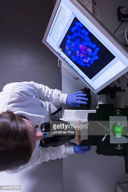 Cancer research laboratory, overhead view of female scientist studying cancer cells under electronic microscope
