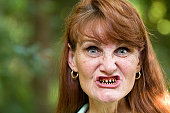 Mature female cancer patient shows her teeth that have been ground down in preparation for a full mouth dental crown because of tooth decay, an oral complication of chemotherapy and radiation treatmen