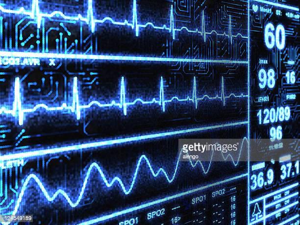 Monitor de cardíaca