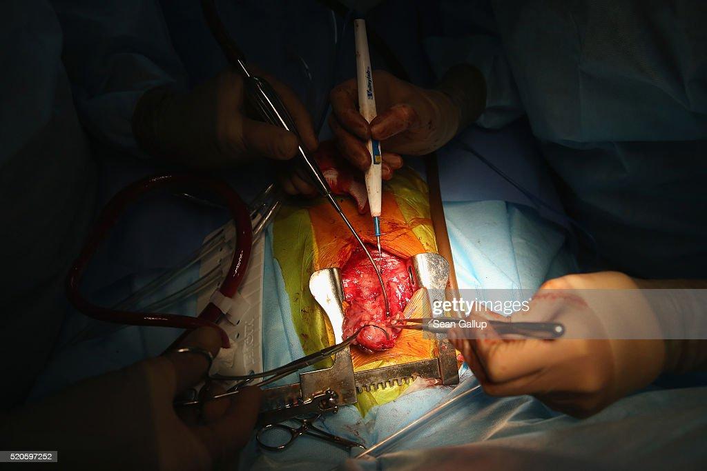 how to become a cardiac surgeon