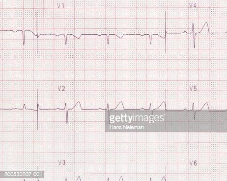 Cardiac testing printout : Stock Photo