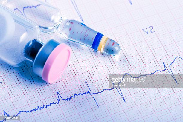 ECG cardiogram chart with medication