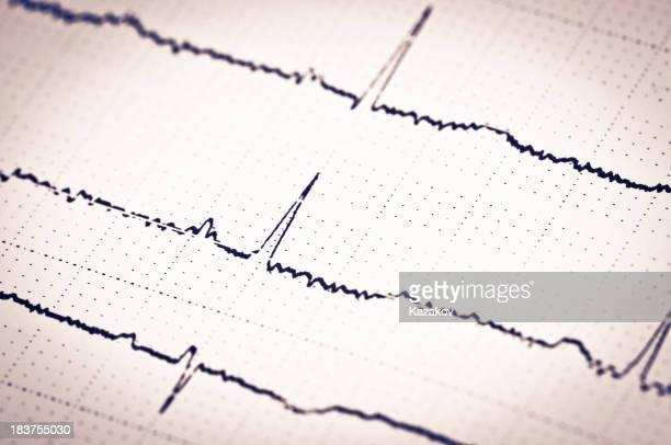 En el electrocardiograma