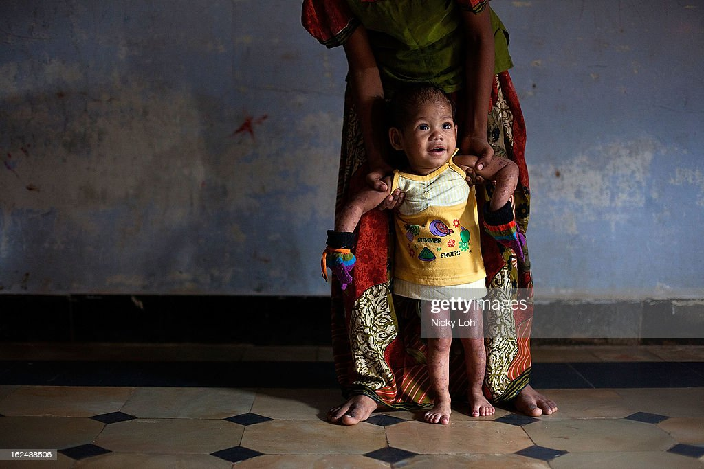 A caretaker looks after Kavitha inside a room at the Aarti Home shelter on February 21, 2013 in Kadapa, India. Kavitha was sent into the orphanage in 2011 by her grandfather when her HIV-positive father attempted to kill her to avoid a future dowry payment. Her mother too refused to acknowledge her in hopes of a second marriage. Female infanticide is still prevalent in rural areas of India. The abuse of the dowry tradition has been one of the main reasons for sex-selective abortions and female infanticides in India.