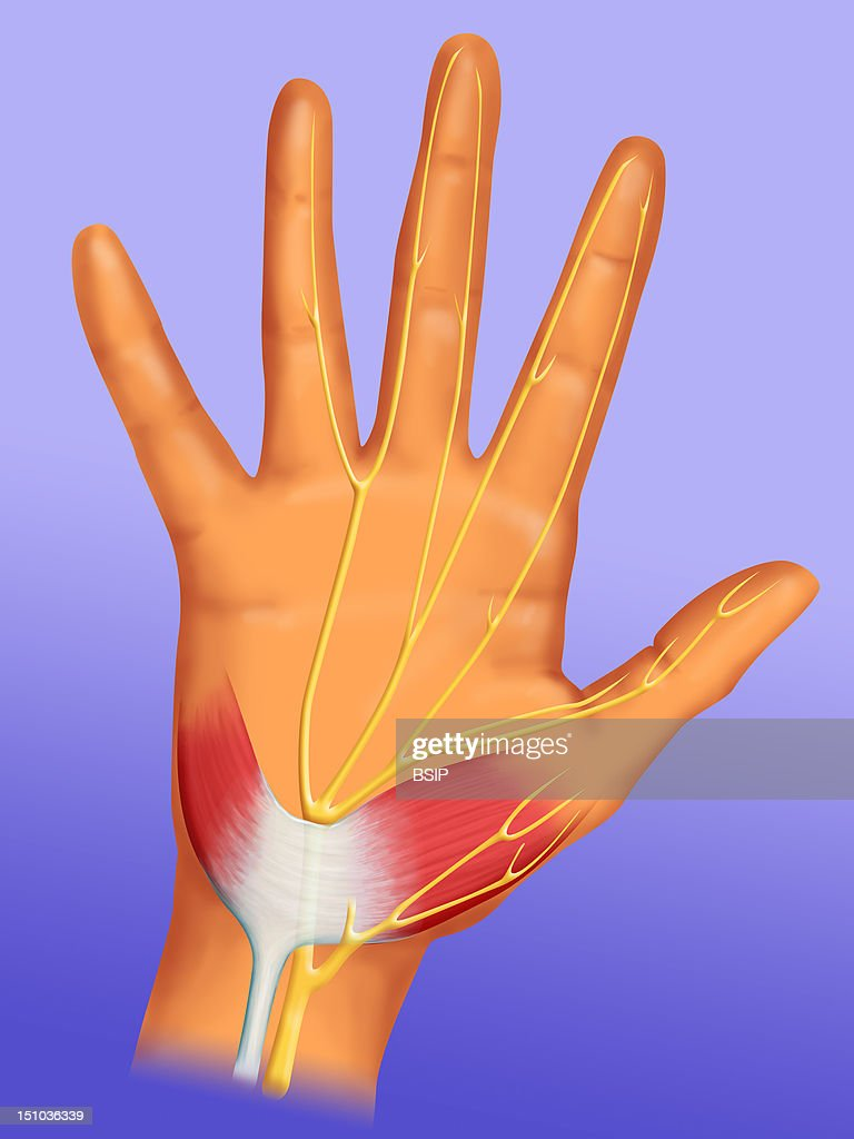 Carpal Tunnel. On The Palmar Face Of The Wrist We Can Observe An Anatomical Tunnel Called Carpal Tunnel. The Tendons And The Median Nerve Slip Throught This Tunnel Which Enable The Fingers To Flex. When The Median Nerve In Yellow Is Compressed By The Annular Ligament Of The Carpus In White, We Speak About Carpal Tunnel Syndrome. This Syndrome Is Characterized By A Tingling And Numbness In The Fingers. We Also Observe A Loss Of Muscular Strength In The Thumb. This Condition Is More Frequent Among Menopausal Women.