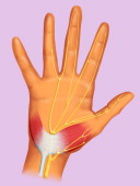 Carpal Tunnel On The Palmar Face Of The Wrist We Can Observe An Anatomical Tunnel Called Carpal Tunnel The Tendons And The Median Nerve Slip Throught...