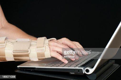 Carpul Tunnel in Wrist -  Using Laptop