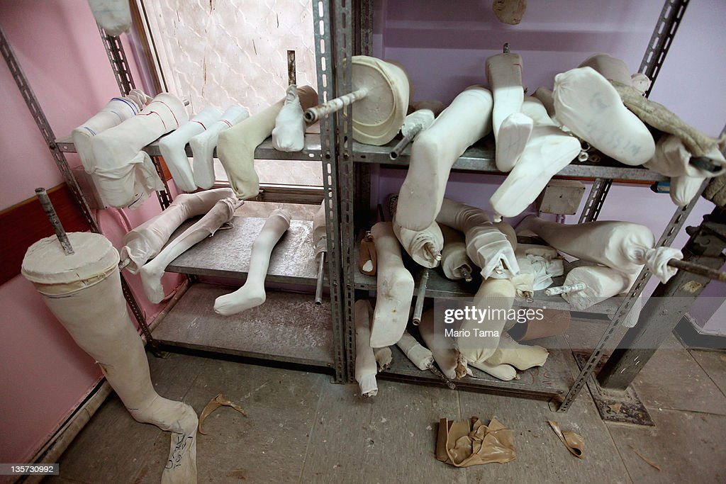 Casts for prosthetics sit on shelves at the Factory of Prosthetic Limbs on December 13, 2011 in Baghdad, Iraq. Wounded Iraqis face a shortage of the outdated prosthetics due to a spike in war-related injuries in recent years. Iraq's health care system remains in shambles following two decades of war and economic sanctions. Following the 2003 U.S. invasion, thousands of physicians fled the country while others were killed. Some physicians have since returned but there is still a critical shortage of doctors. Iraq is transitioning nearly nine years after the 2003 U.S. invasion and subsequent occupation. American forces are now in the midst of the final stage of withdrawal from the war-torn country. At least 4,485 U.S. military personnel have died in service in Iraq. According to the Iraq Body Count, more than 100,000 Iraqi civilians have died from war-related violence.