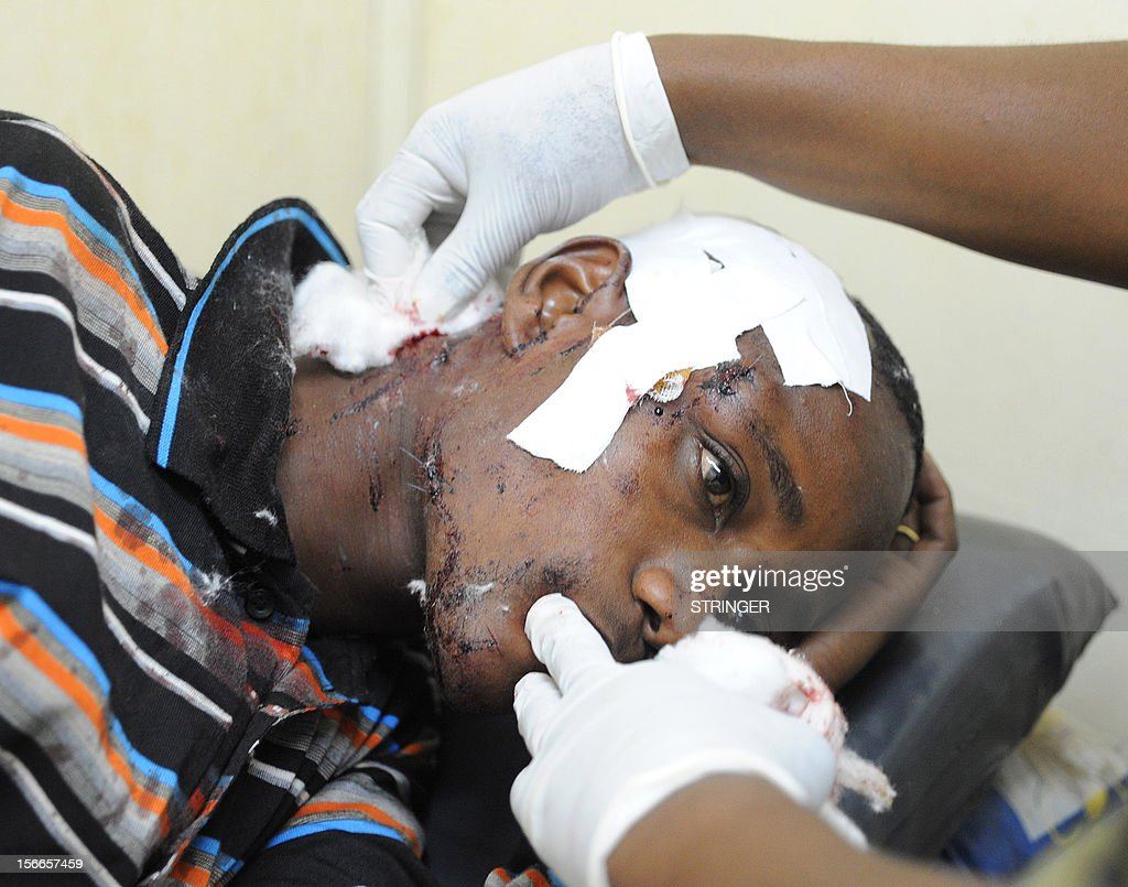 A casualty of a suspected bomb attack is tended to by a medic at a hospital, in Nairobi, on November 18, 2012. Seven people were killed and many more wounded when an apparent explosive device was hurled at a packed minibus in a predominantly Somali area of the Kenyan capital Nairobi today, police and the Red Cross said. Nairobi police chief Moses Nyakwama said the blast occurred on a so-called 'matatu', or local minibus, in the district of Eastleigh, where mainly Somalis or Kenyans of Somali origin live and which has been the target of other attacks in recent weeks. AFP PHOTO/STRINGER